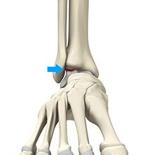 Osteochondral Injuries of The Ankle